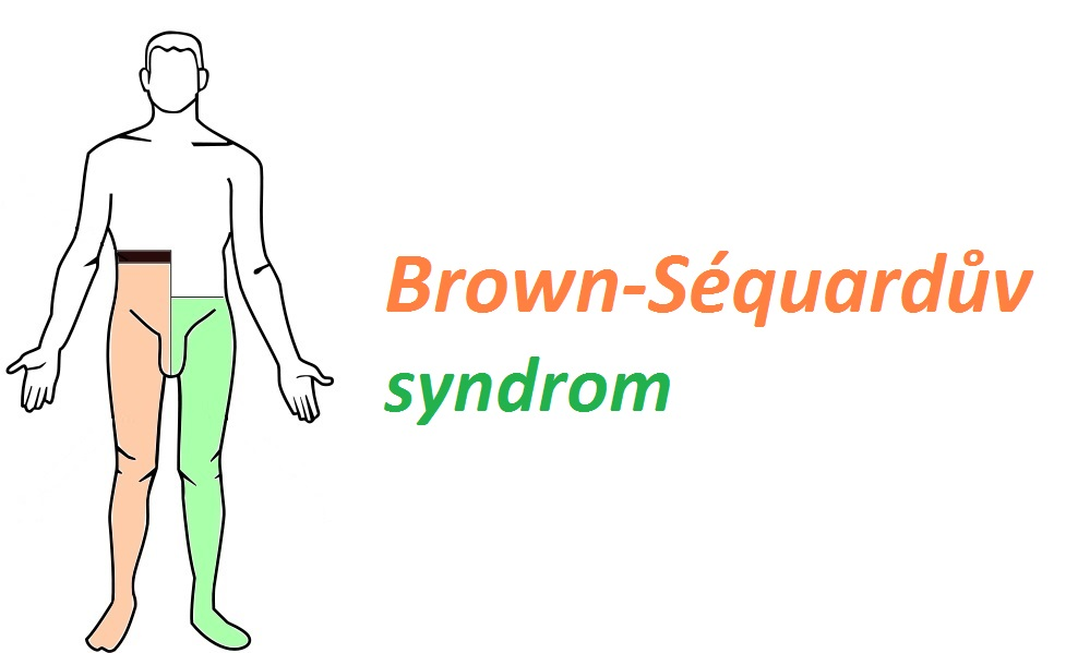 brown-sequarduv-syndrom-priznaky-projevy-symptomy-2