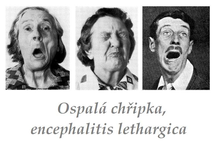 History of encephalitis lethargica