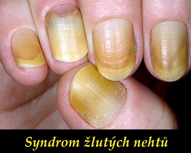 Syndrom Zlutych Nehtu Priznaky Projevy Symptomy Priznaky A
