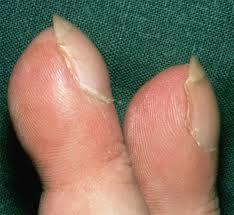 cor-pulmonale-priznaky-projevy-symptomy-palickovite-prsty