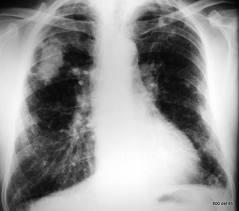 jak-se-projevuje-silikoza-plic-priznaky-projevy-symptomy