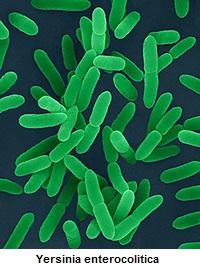 yersinioza-priznaky-projevy-yersinia-enterocolitica-bakterie-obrazek-fotografie